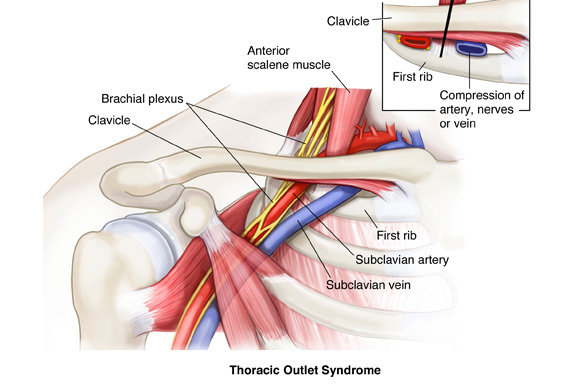 THORACIC OUTLET SYNDROME | Sport Med School
