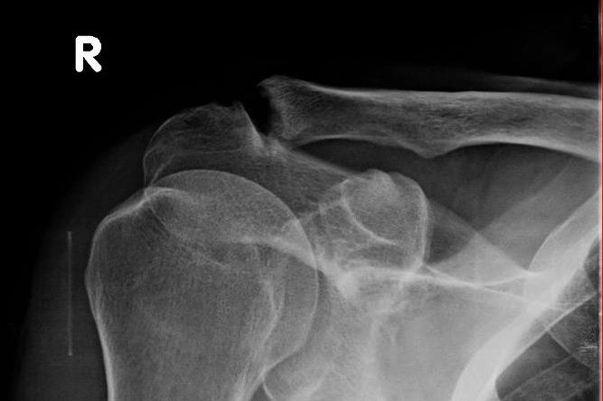 tratament complex al articulațiilor cu condroprotectoare