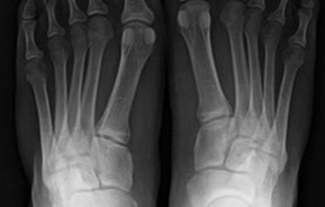 a-feet