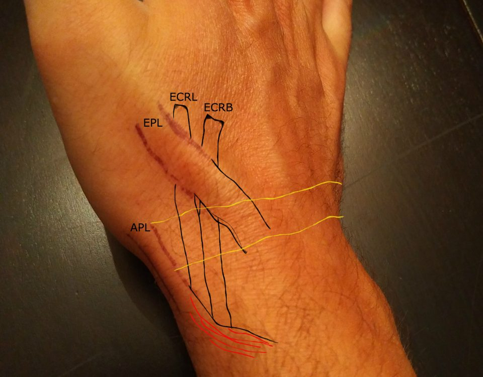 intersection syndrome wrist)